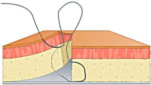 figure 8 suture step 5