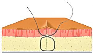 figure 8 suture step 9