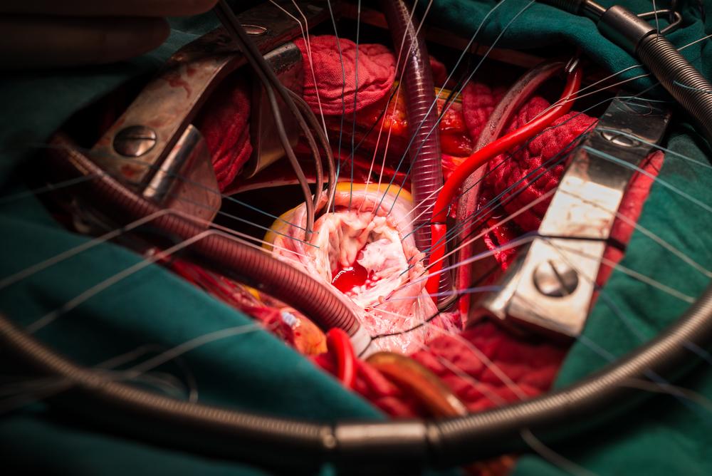 become a cardiothoracic surgeon