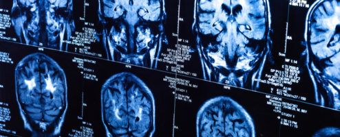 A Day in the Life of a Neurologist and Neurosurgeon - The